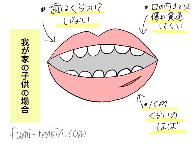 子供の唇の怪我の程度